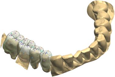 3D Zahn Modell